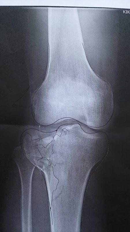 3/14に事故ってしまいました。脛骨高原骨折!色々なことを考えました。